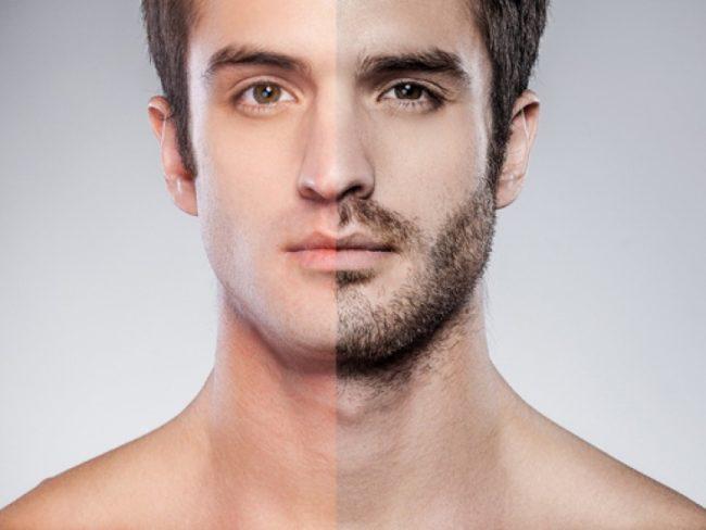 эпиляция на лице у мужчин