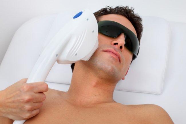 лазерная эпиляция бороды