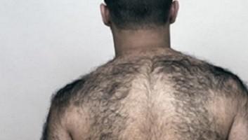 как избавиться от волос на спине